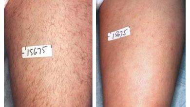 چه مدت اثر گذاری لیزر طول می کشد؟