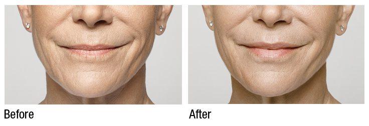 اثر تزریق ژل صورت