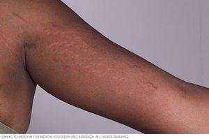 اثر کشیدگی پوست روی دست