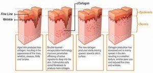 احیا کردن، بازسازی و تحریک کلاژن سازی پوست از طریق نخ قابل جذب pdo
