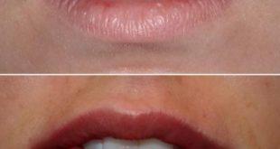 تزریق ژل خط خنده و لبخند، افزایش حجم لب و گونه، رفع چین و چروک پوست
