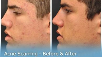 Photo of چطور اثر زخم جای جوش روی پوست را به سرعت از بین ببریم؟