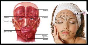 فرآيند درمان با استفاده از بوتاکس