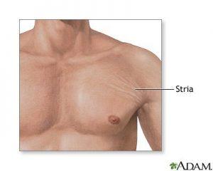 استریا یا اثر کشیدگی پوست