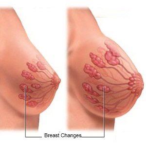 کوچک کردن سینه - به روش طبیعی با طب سوزنی