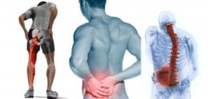استفاده از طب سوزنی برای درمان کمر درد
