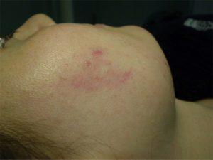 التهاب پوست ناشی از لیزر حذف مو های زائد
