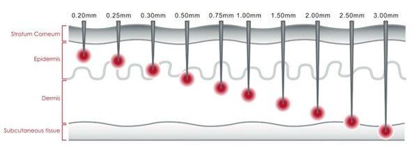 سوزن های 1.5 میلی متری میکرونیدل