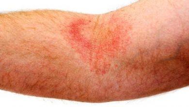 Photo of درمان اگزما و خارش پوست با طب سوزنی بسیار موثر و ثابت شده است