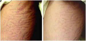 درمان ترک پوستی يا استرچ مارک پوست