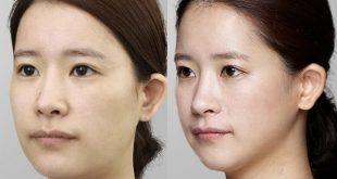 تاثیر ترد لیفت صورت بر روی چین و چروک ها و جوان سازی صورت