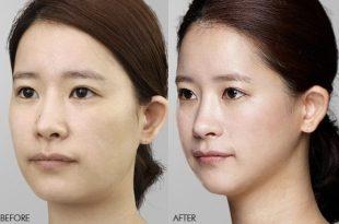 نخهای به کار رفته برای این روش زیبایی پوست به سبک کرهای قابل جذب با نام پی دی او pdo میباشد