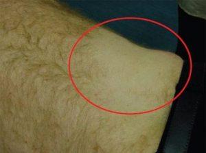 تست پوستی تاثیر لیزر بر موهای زائد را مشخص می کند