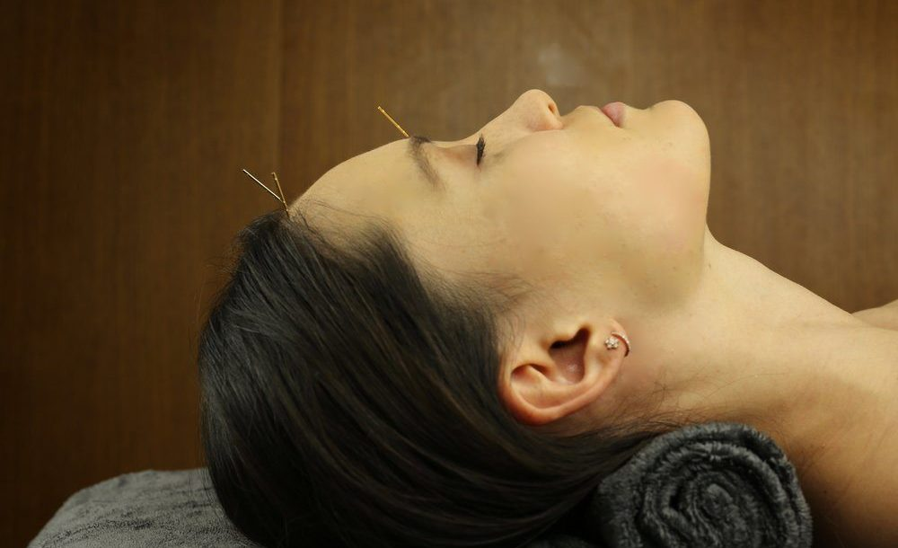 اثرات ماندگار طب سوزني زيبايي پوست صورت و گردن