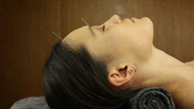 Photo of طب سوزنی برای چروک صورت و ضد پیری پوست بسیار موثر است