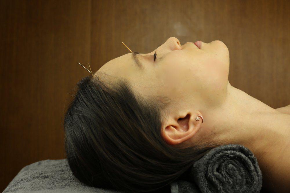 اثرات ماندگار طب سوزنی برای چروک صورت و گردن