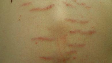 Photo of درمان ترک پوستی شکم و خطوط کشیدگی روی بدن با طب چینی و روش های مدرن