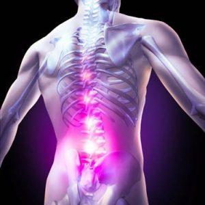 درد ناحیه تحتانی کمر