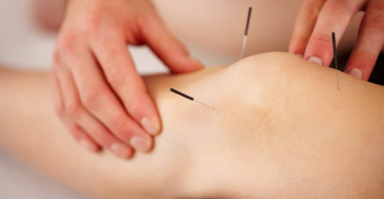 تصویر کاهش درد و کنترل درد ناشی از بیماری های مختلف با طب سوزنی امکان پذیراست؟