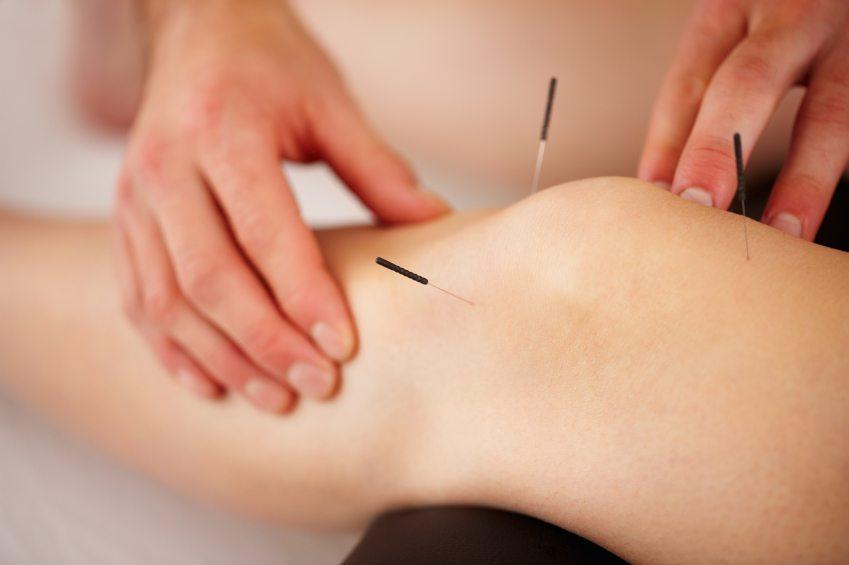 درمان آرتروز زانو با طب سوزنی