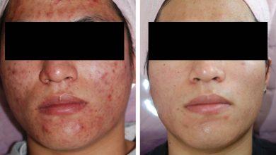 درمان جوش صورت و اسکار يا جای زخم جوش يا آکنه