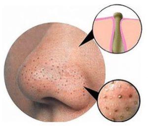 درمان با طب سوزنی قادر است انواع آکنه، جوش، کیست، جوش سر سیاه و سفید را درمان کند