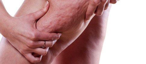 درمان سلولیت با طب سوزنی سنتی چینی