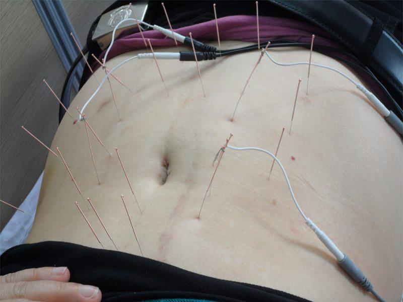 طب سوزنی الکتریکی شکم