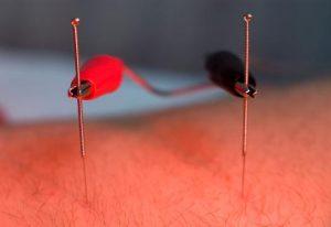 طب سوزنی الکتریکی برای درمان عدم تعادلهای هورمونی و درمان جوش صورت