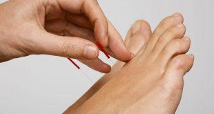 درمان درد و برطرف کردن ناراحتی های عضلات و بخش های دیگر بدن با طب سوزنی