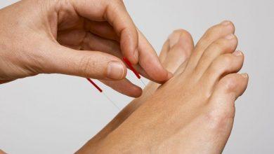 Photo of درمان درد و برطرف کردن ناراحتی های عضلات و بخش های دیگر بدن با طب سوزنی