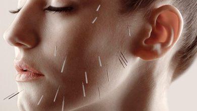 Photo of درمان افتادگی پوست صورت با طب سنتی و سوزنی چین چطور اثر می کند؟