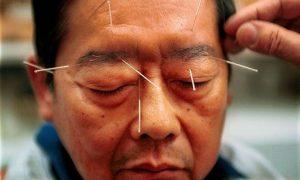 طب سوزنی برای درمان سر درد و درمان مشکلات روحی