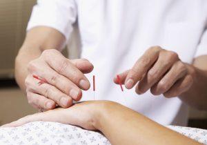 طب سوزنی برای درد مفاصل و سندرم تونل مچ دستی