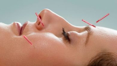 طب سوزنی برای کاهش درد