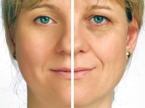 جوانسازی پوست