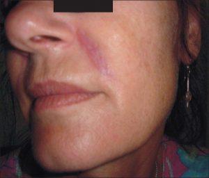 نتیجه و عوارض تزریق پرکنندهها یا تزریق ژل در صورت