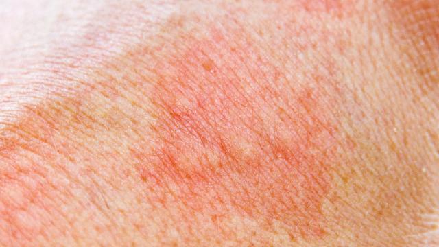 عوارض جانبی لیزر حذف موهای زائد
