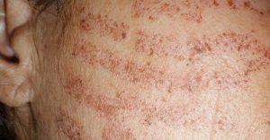 عوارض جانبی لیزر سوختگی پوست