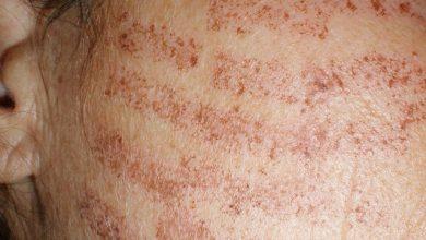 Photo of عوارض لیزر موهای زائد چه چیزهایی می تواند باشد و چرا اتفاق می افتد؟