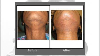 Photo of از بین بردن موهای زائد بدن با استفاده از لیزر چقدر موثر و رضایت بخش است؟