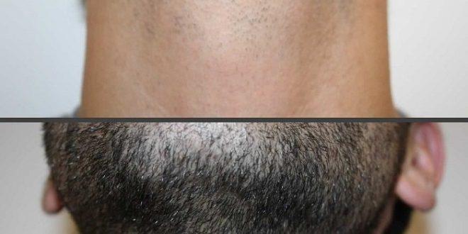 لیزر مو های زیر گردن