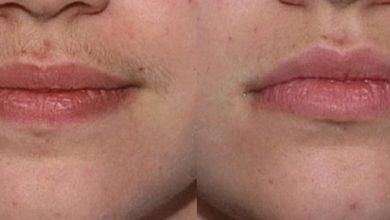 Photo of لیزر حذف موهای زائد چطور کار می کند و عوارض جانبی احتمالی آن چیست؟