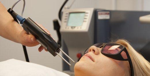 لیزر کردن مو های زائد با الکساندریت