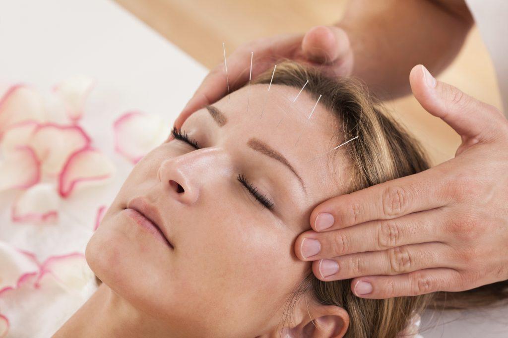طب سوزنی روشی بسیار آرامش بخش و نشاط آور است
