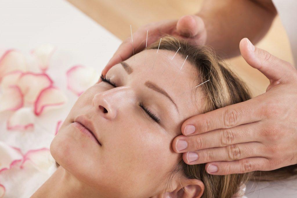 ضد چروک پوست پوست صورت و گردن با طب سوزنی آرایشی یک روش سریع و مطمئن و ماندگار برای جوانی پوست است