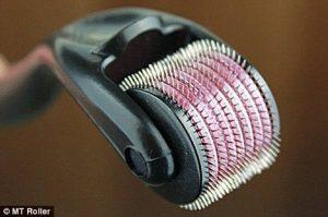 دستگاه میکرو نیدل برای درمان ترک پوستی