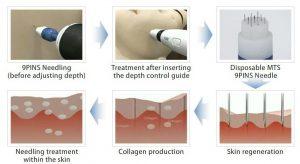 تولید کلاژن با استفاده از سوزن کاری پوست