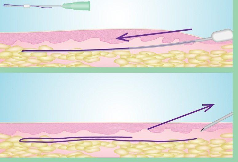 نخهای قابل جذب را در زیر ناحیهای که قرار است پوست کشیده شود، قرار داده میشوند