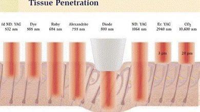 Photo of عوارض جانبی لیزر برای حذف موهای زائد بدن چیست و چطور از آن ها باید جلوگیری شود؟